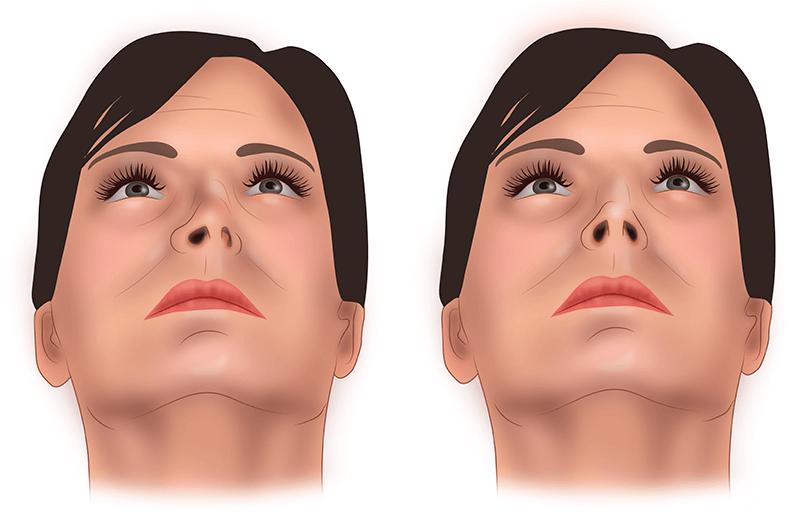 исправление перегородки носа без операции