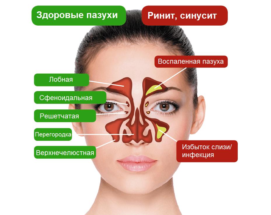 Симптомы и лечение гайморита у взрослых