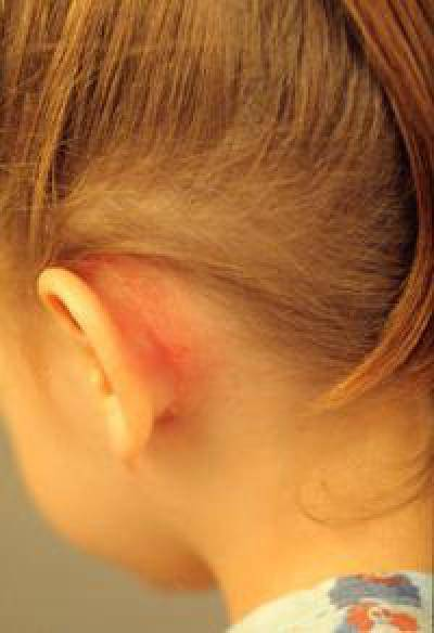 Гипертрихоз: признаки, лечение, фото, причины