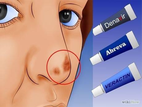 Герпес в носу и на губах — простуда: что делать, как избавиться? как лечить герпес в домашних условиях препаратами и народными средствами?
