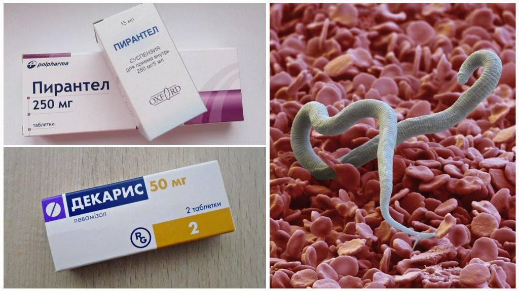 Способы лечения и профилактики глистов у беременных