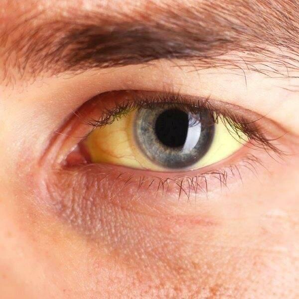 Желтоватые склеры глаз!!!! 3 недели! - запись пользователя ленка (id2442877) в сообществе здоровье новорожденных в категории желтуха новорожденных - babyblog.ru