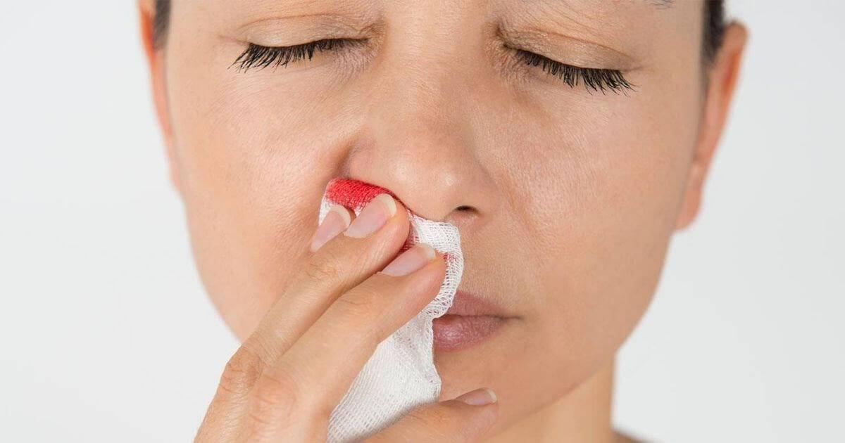 Кровь из носа при сморкании причины у взрослого — простуда