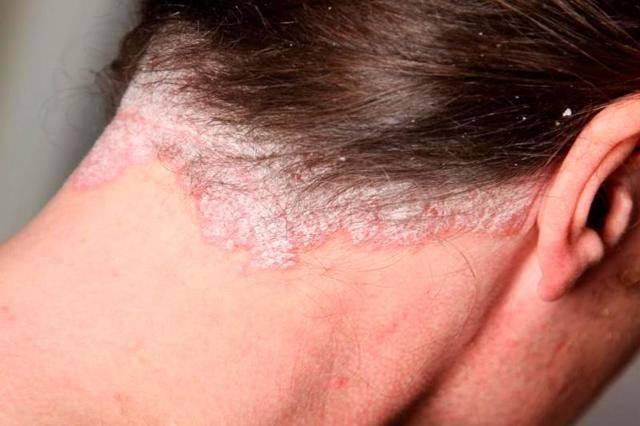 Себорейный дерматит заразен или нет