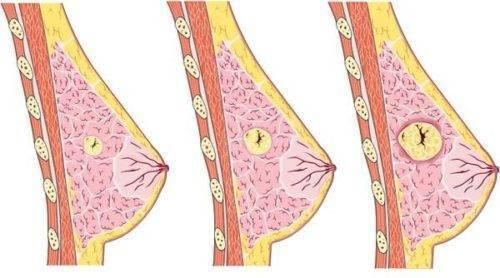 лекарства при фиброзно кистозной мастопатии молочных желез