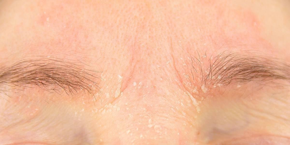 Как выглядит и почему появляется псориаз на лице, как его лечить?