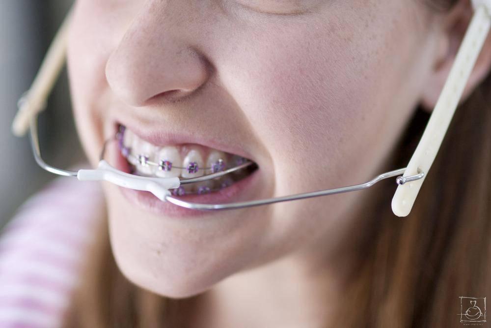 Больно ли ставить брекет-системы на зубы?