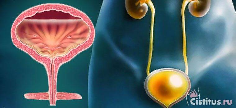 Цистит и уретрит: отличия симптомов и проявлений
