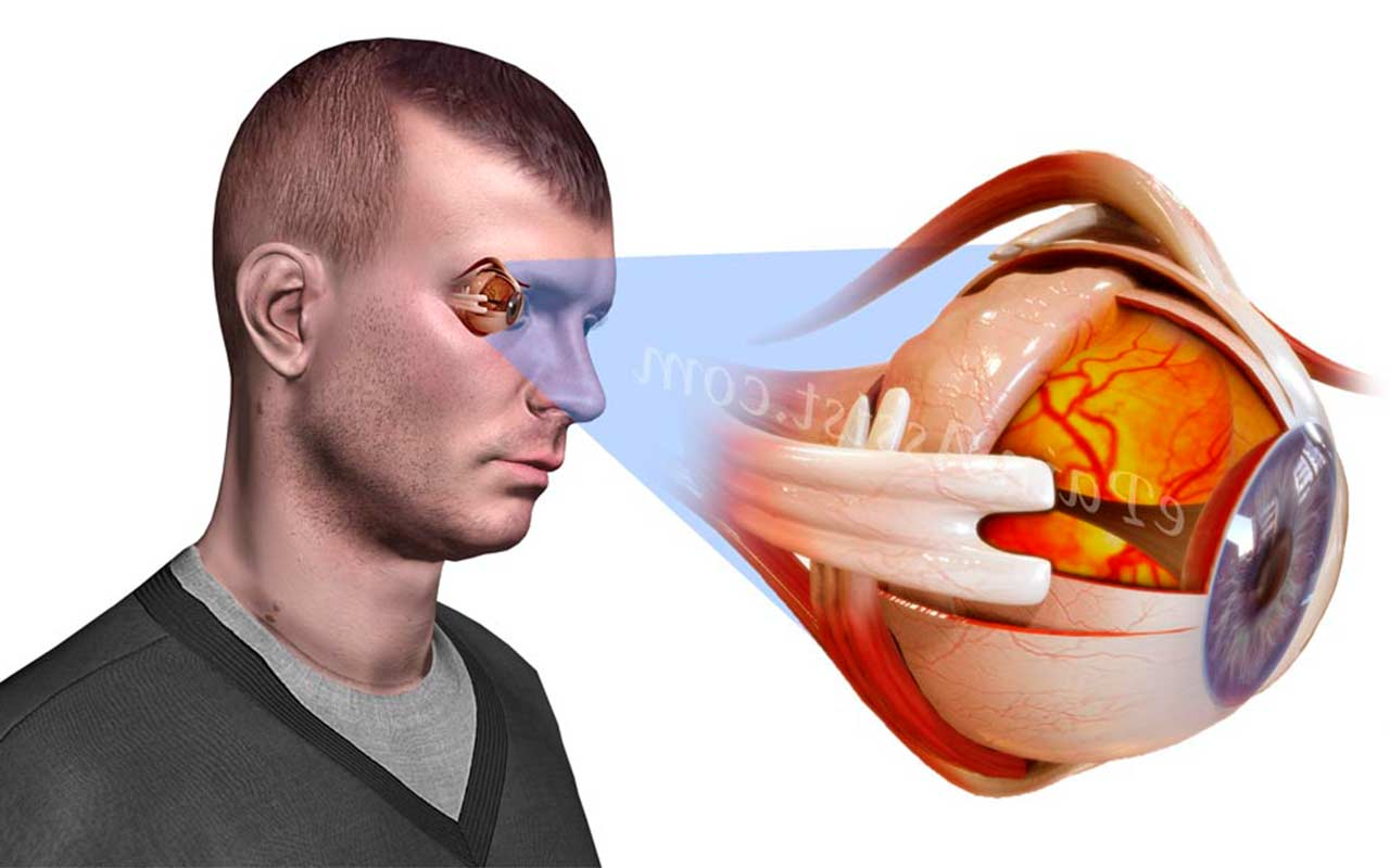 как вести себя при глаукоме
