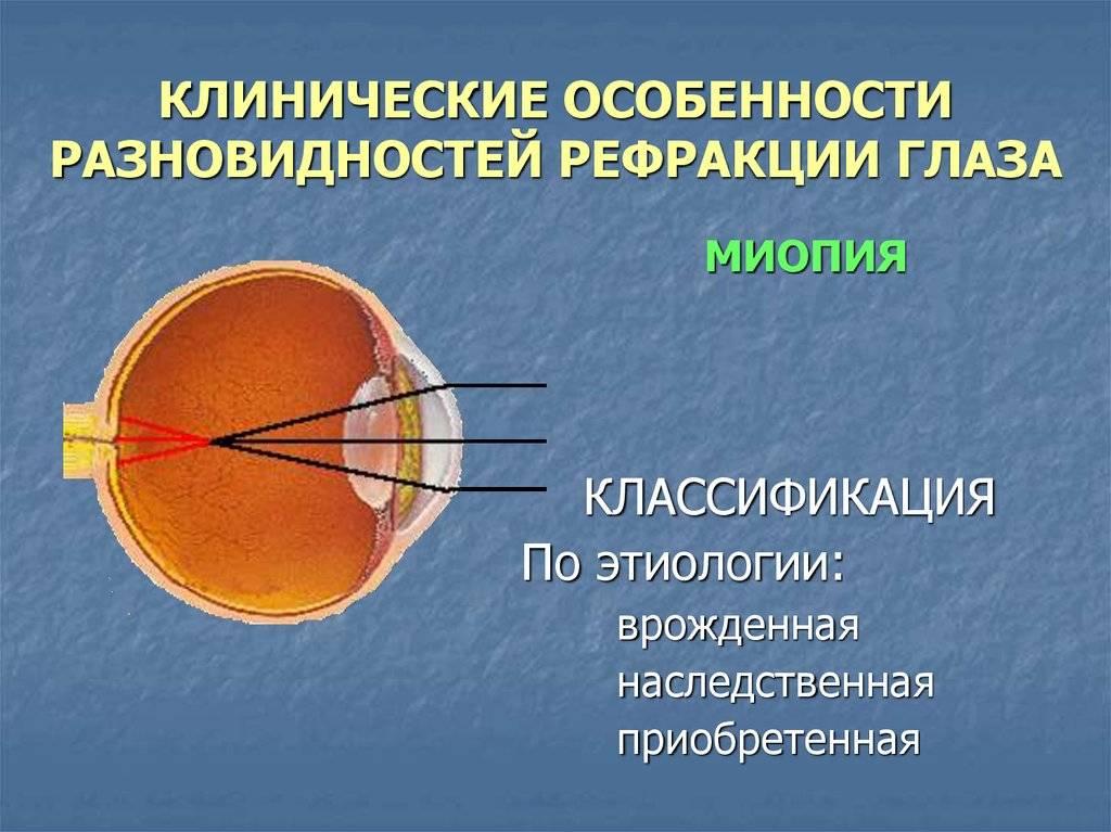 Определение нарушений рефракции глаза: виды и лечение зрения