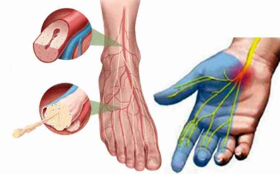 Алкогольная полинейропатия нижних конечностей: что это такое, симптомы и лечение заболевания