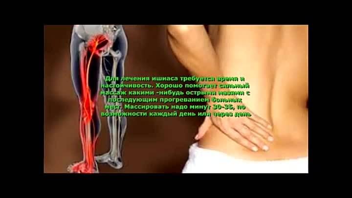 Народная медицина - лечение невралгии народными методами