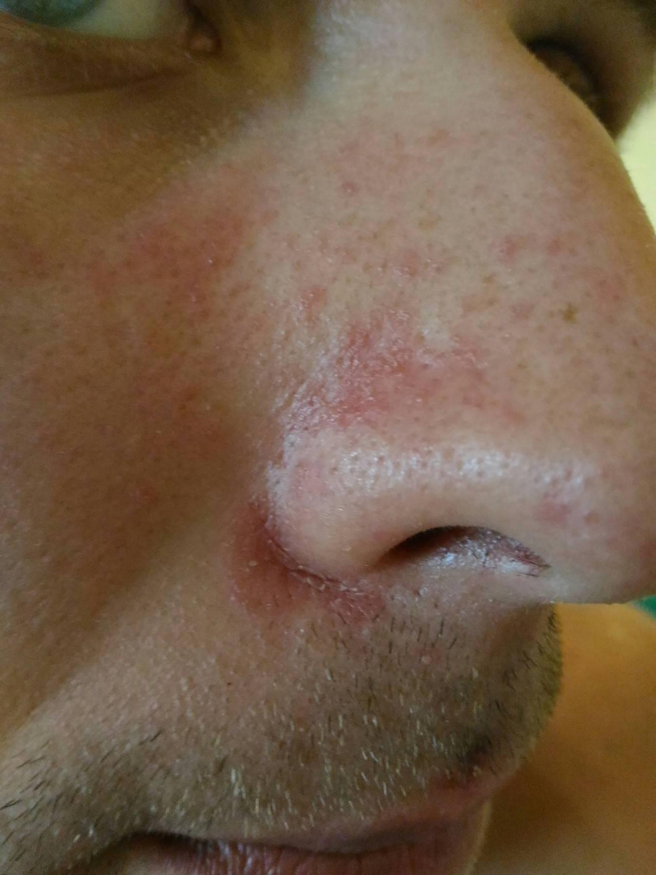 Рана с корочкой в носу: причины и лечение. не заживает рана в носу что делать если в носу царапина