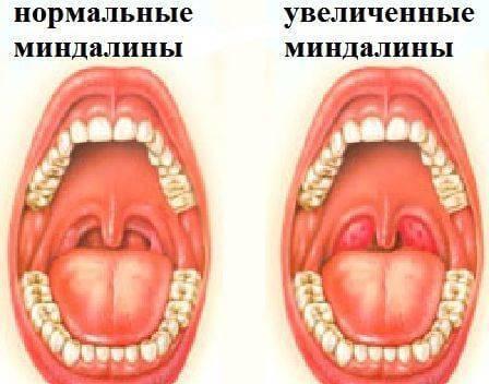 Вирусная ангина у детей и взрослых - пути заражения, симптомы и лечение медикаментозными препаратами