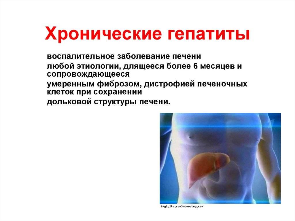 Хронический гепатит: симптомы и лечение, профилактика