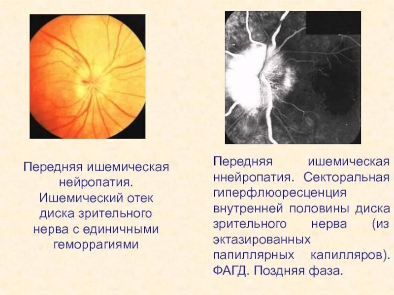 Ишемическая нейропатия зрительного нерва лечение