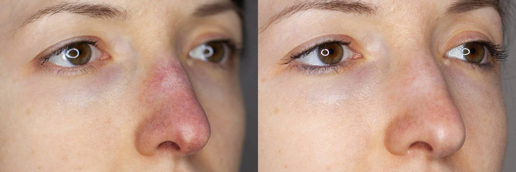 как избавиться от сливы на носу
