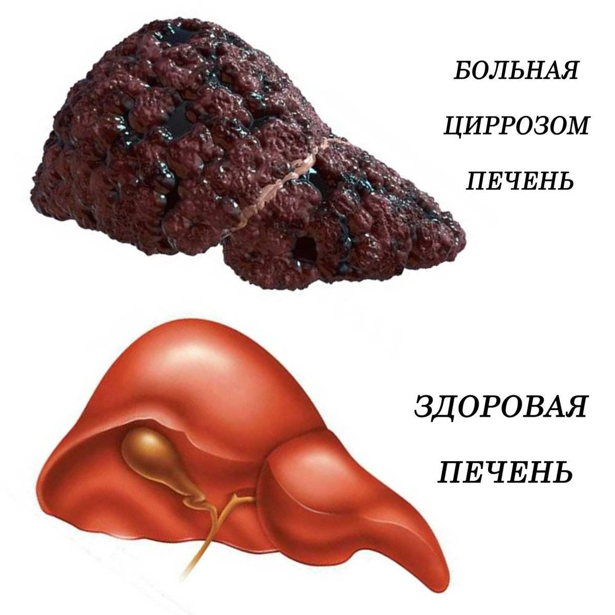 Рак печени на фоне цирроза печени: в чем разница и сходство