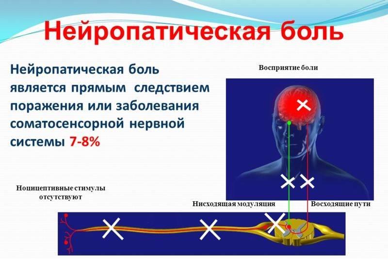 что такое нейропатическая боль