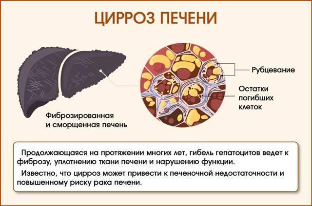 интоксикация печени