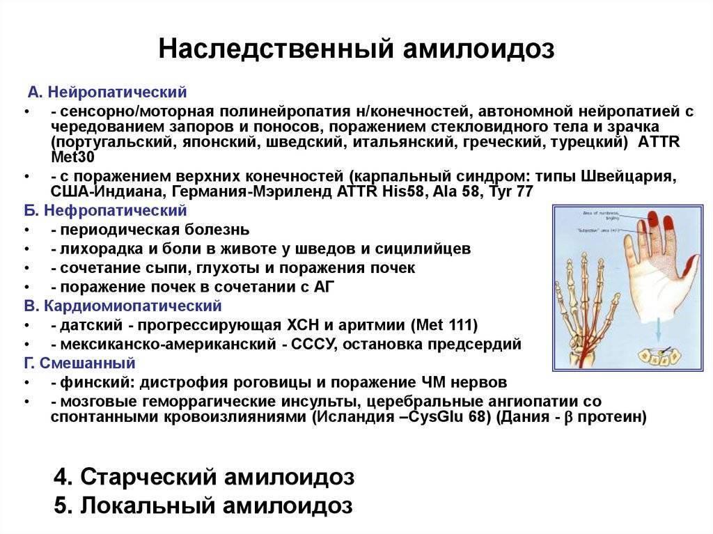 полинейропатия нижних конечностей симптомы
