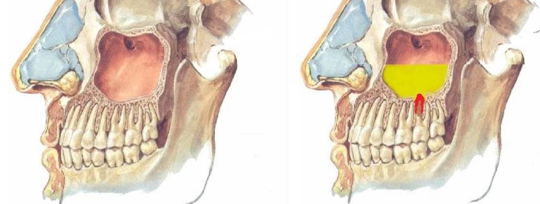 болят ли зубы при гайморите