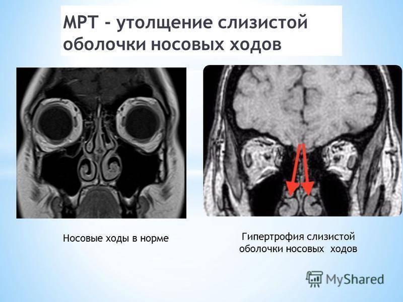 Воспаление пазух носа, гайморит и синуит