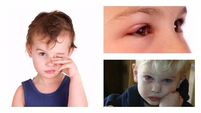 почему у ребенка чешутся глаза