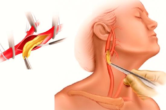 Операция на сонной артерии: виды, показания, риски, проведение