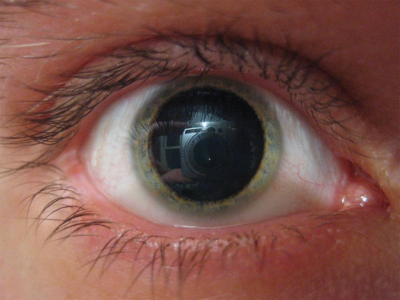 Почему один глаз стал мутно видеть