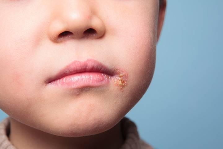 герпес у ребенка на теле лечение