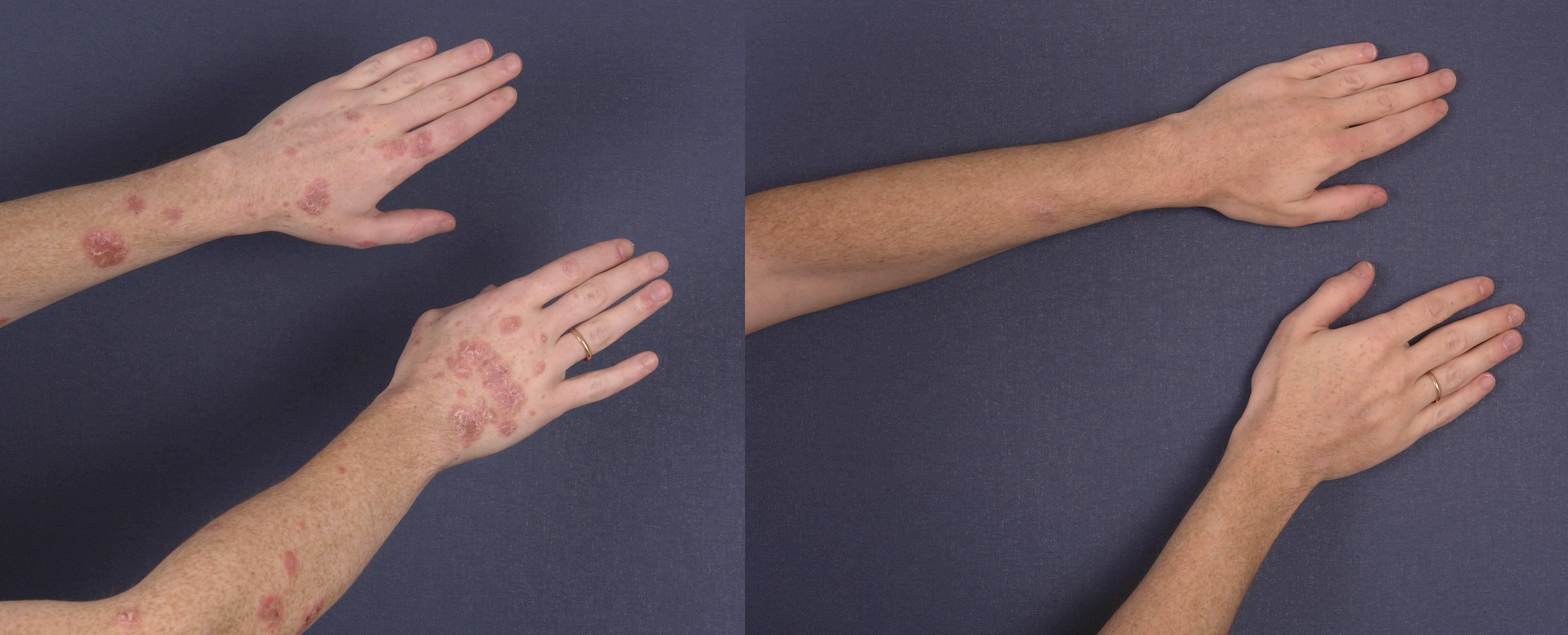 Псориаз на руках: типы, причины и способы лечения