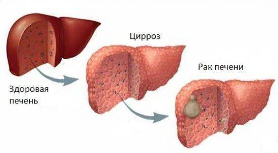 Осложнения цирроза печени