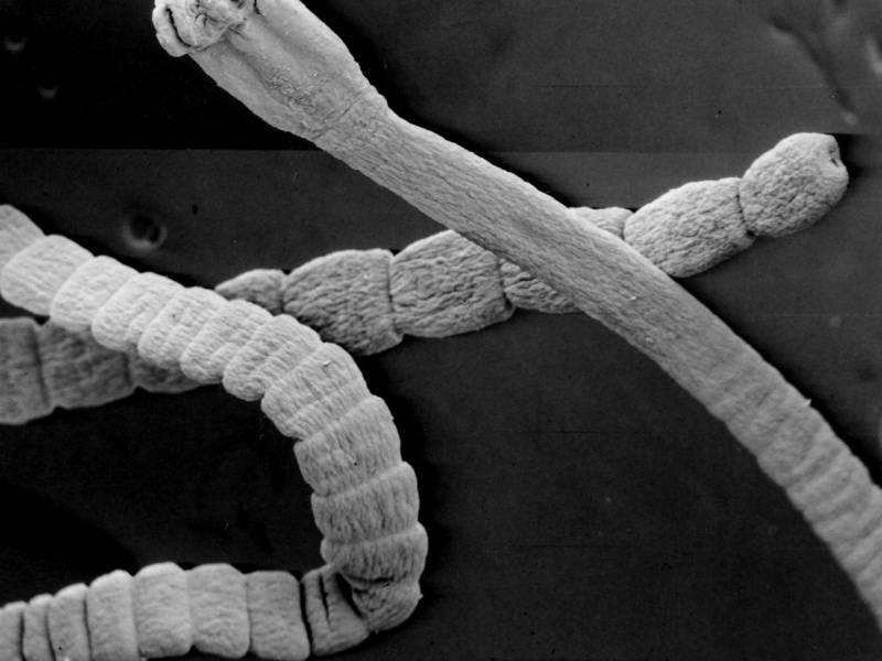 Тениоз - симптомы болезни, профилактика и лечение тениоза, причины заболевания и его диагностика на eurolab