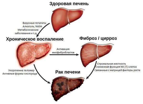 Рак печени у детей причины - лечение печени