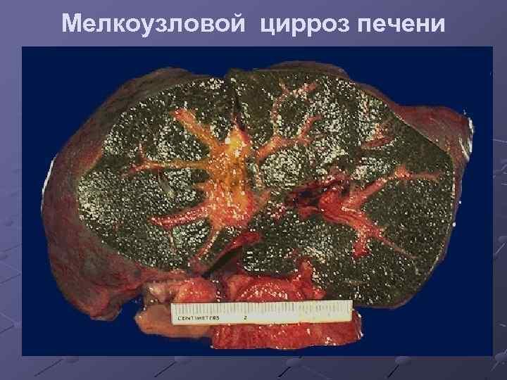 Мелкоузловой (микронодулярный) цирроз печени: симптомы, макропрепарат, лечение и продолжительность жизни