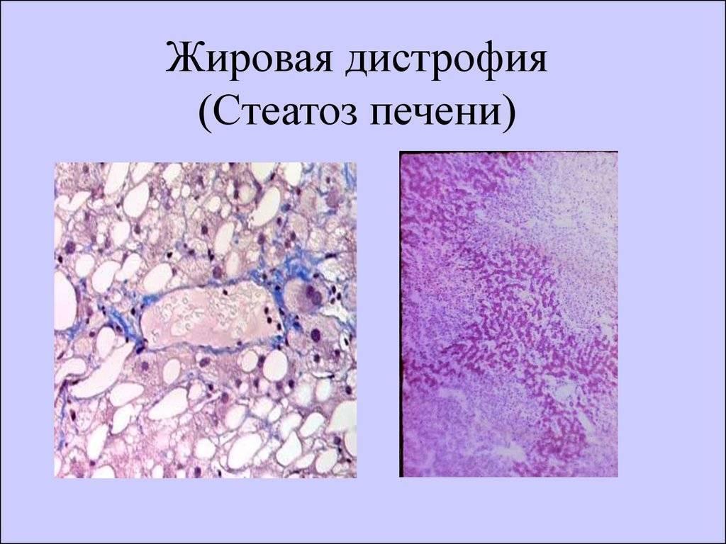 Что такое жировой гепатоз печени: симптомы, лечение, диета