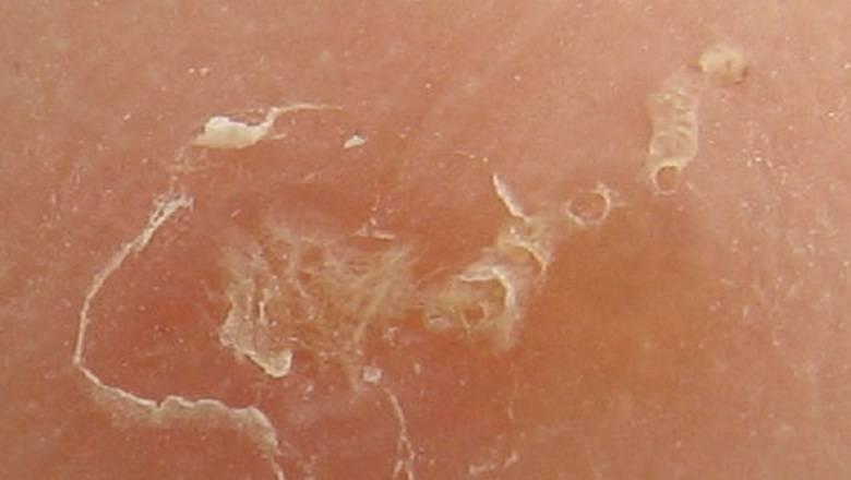 Высыпания на коже при глистах: причины, лечение, фото