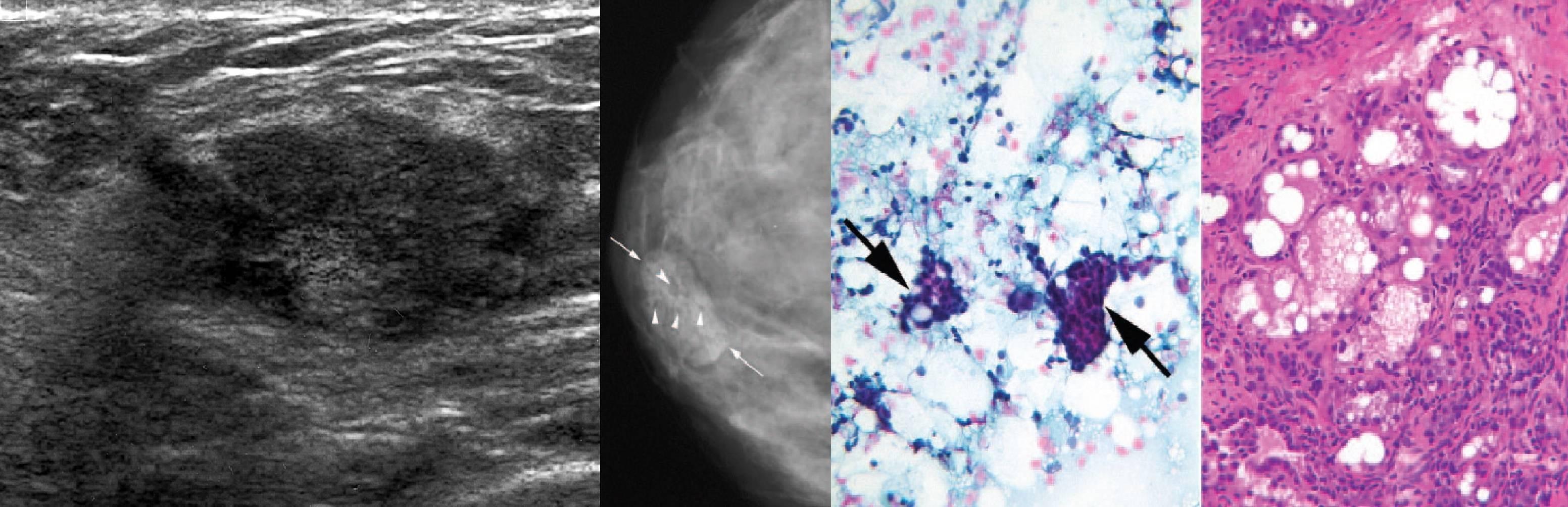 Аденома молочной железы: что это такое, как лечить, симптомы, обязательно ли удалять