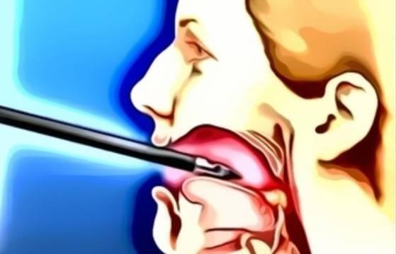Плоскоклеточный рак горла — ooncologiya