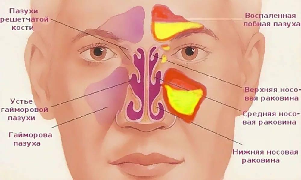 как лечить пазухи носа