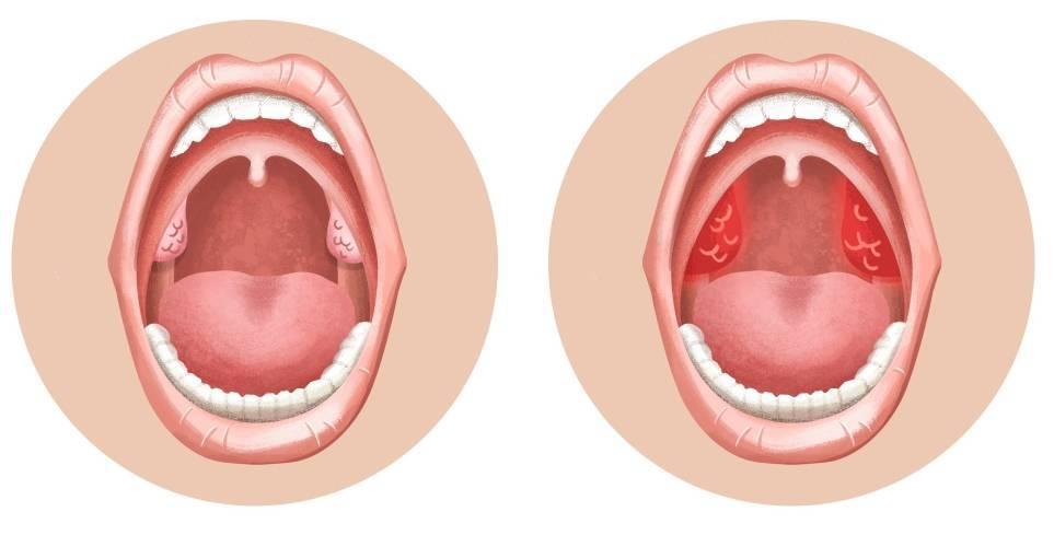 Почему болит горло без симптомов простуды: причины болей после выздоровления