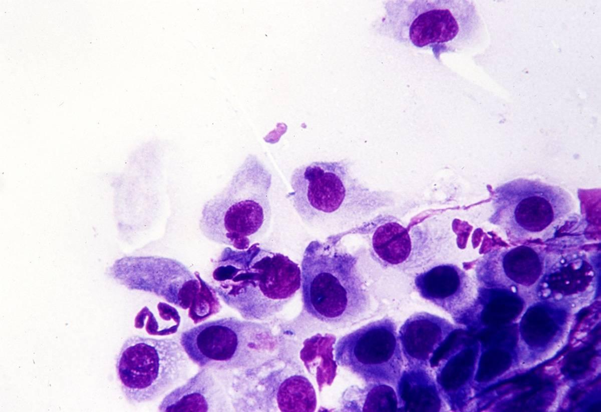 Хламидиоз у мужчин – признаки, симптомы, лечение, последствия