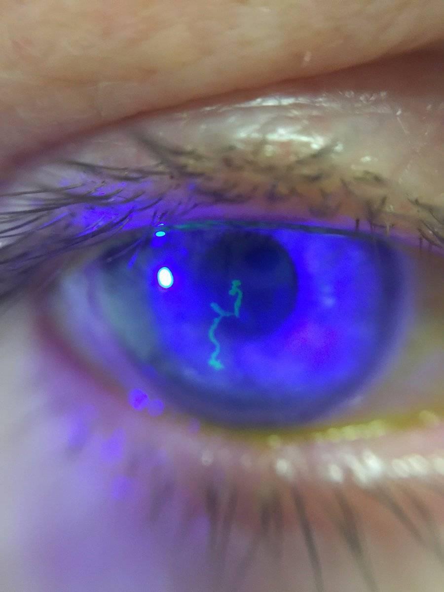 герпетический кератит глаза