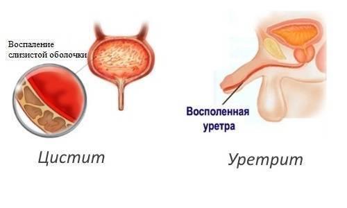 Сходства и различия, а также методы лечения цистита и уретрита у женщин