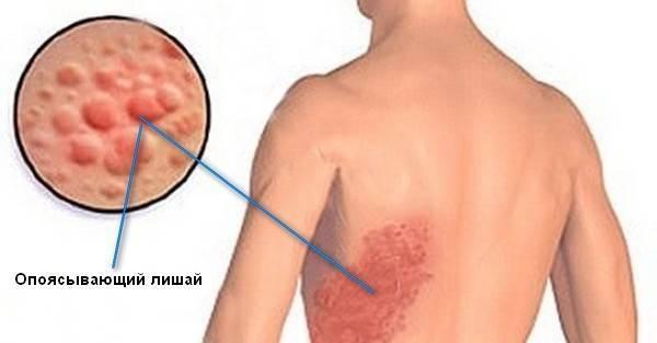 Ветрянка - герпес 3 типа. симптомы и лечение заболевания