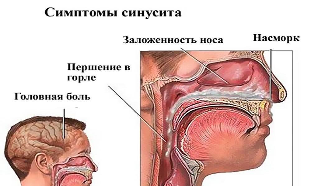 Ринит и синусит: основные отличия. ринит, гайморит и синусит: отличия, симптомы, лечение