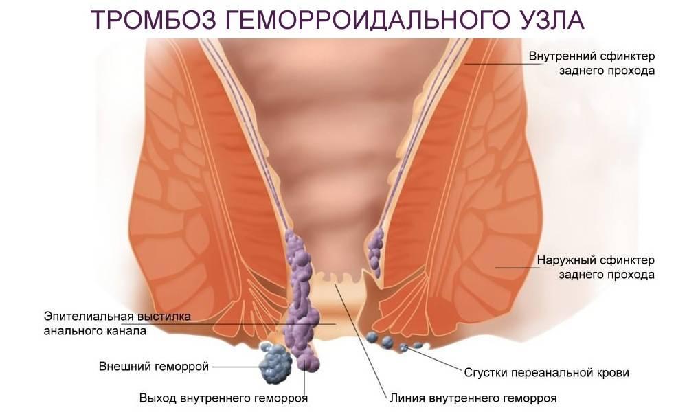 Как распознать первые симптомы и возможно ли вылечить тромбоз наружного геморроидального узла?