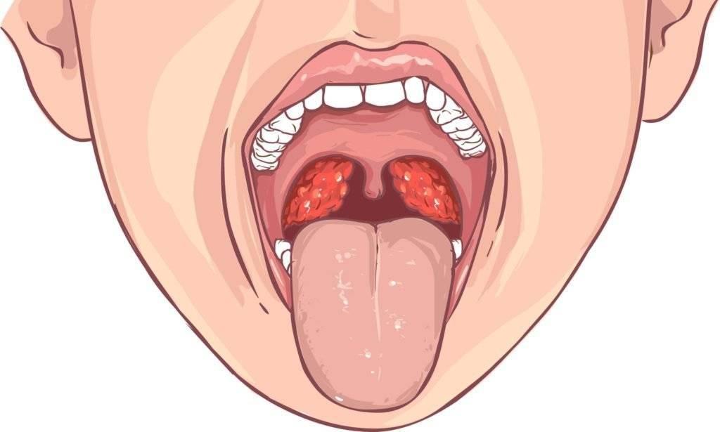 Рыхлое горло у взрослого лечение народными средствами. рыхлое горло у взрослого лечение. почему у детей становятся рыхлыми миндалины