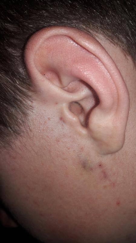 Воспаление на мочке уха. как избавиться от атеромы мочки уха